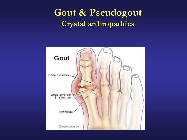 Gout & Pseudogout