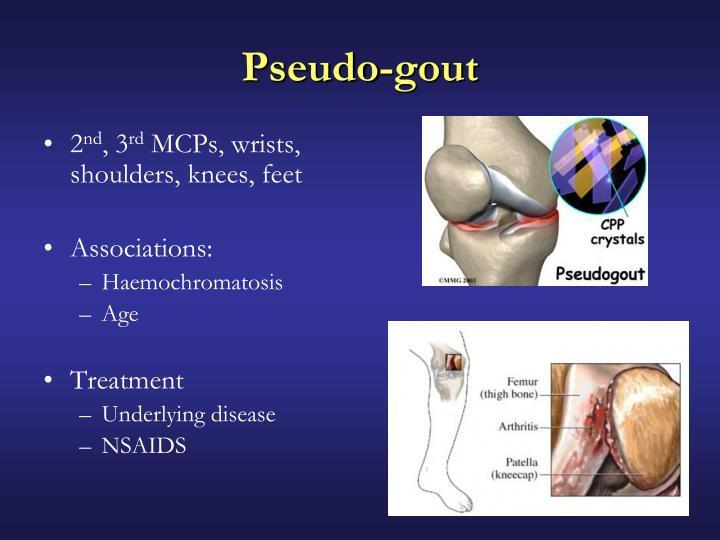 Pseudo-gout