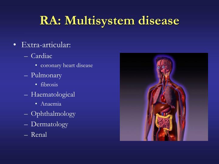 RA: Multisystem disease