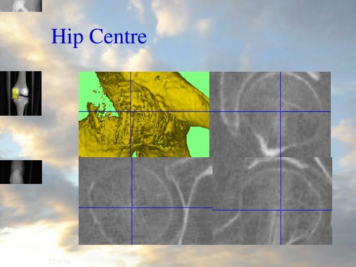 Hip Centre