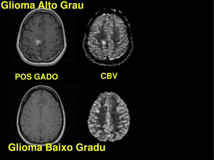 Glioma Alto Grau