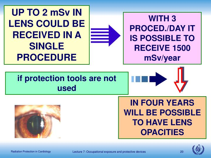 UP TO 2 mSv IN LENS COULD BE RECEIVED IN A SINGLE PROCEDURE