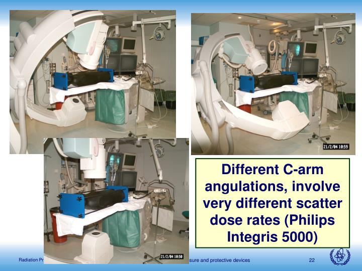 Different C-arm angulations, involve very different scatter dose rates (Philips Integris 5000)