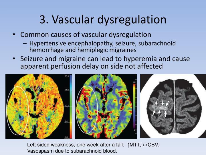 3. Vascular dysregulation