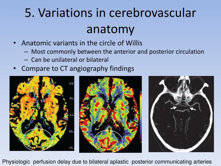 5. Variations in cerebrovascular anatomy