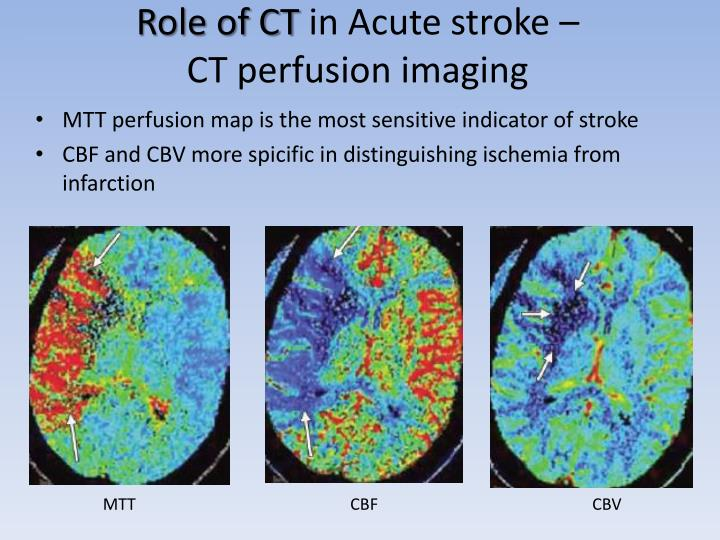 Role of CT