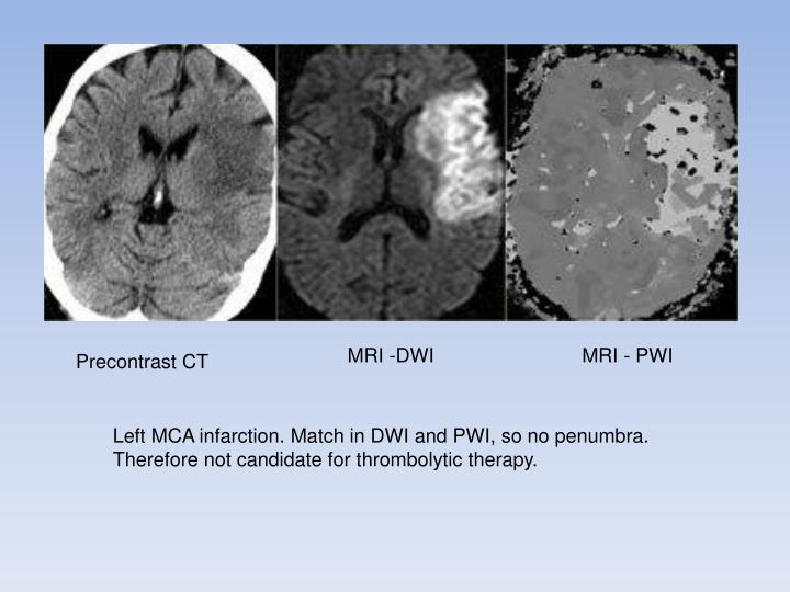 MRI -DWI