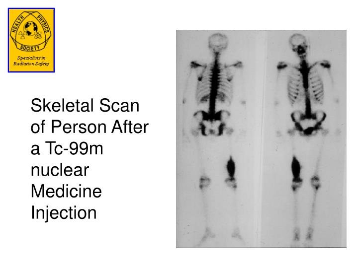 Skeletal Scan of Person After a Tc-99m nuclear Medicine Injection