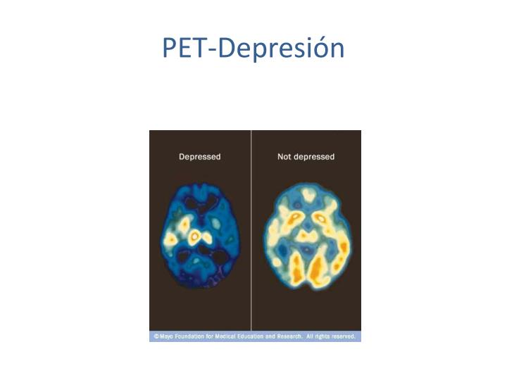 PET-Depresión