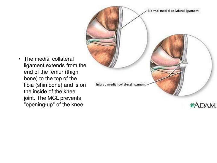 """The medial collateral ligament extends from the end of the femur (thigh bone) to the top of the tibia (shin bone) and is on the inside of the knee joint. The MCL prevents """"opening-up"""" of the knee."""