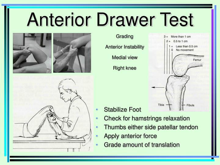 Anterior Drawer Test