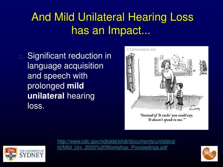 And Mild Unilateral Hearing Loss has an Impact...
