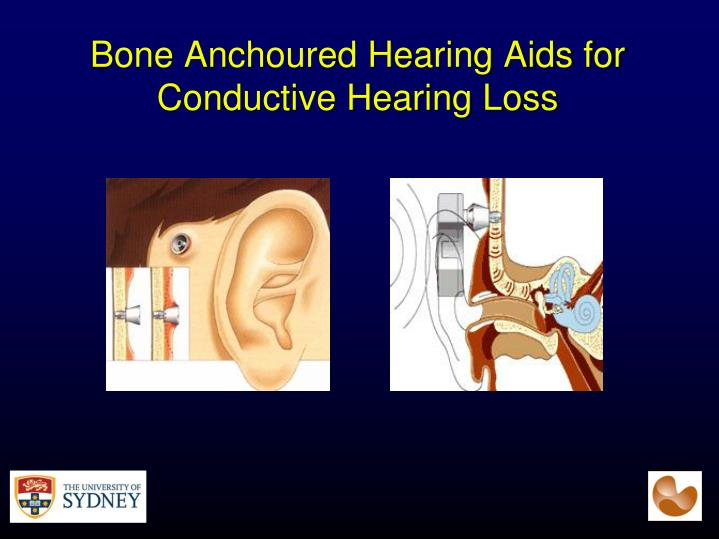 Bone Anchoured Hearing Aids for Conductive Hearing Loss