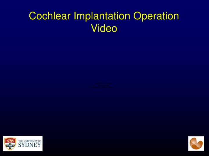 Cochlear Implantation Operation Video