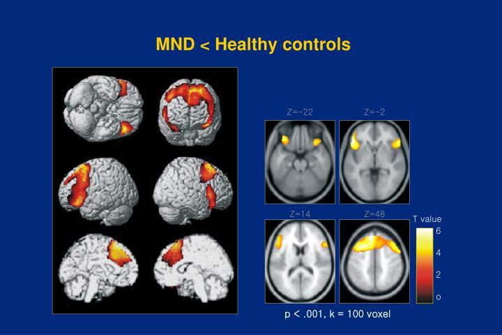 MND < Healthy controls