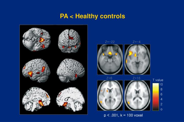 PA < Healthy controls