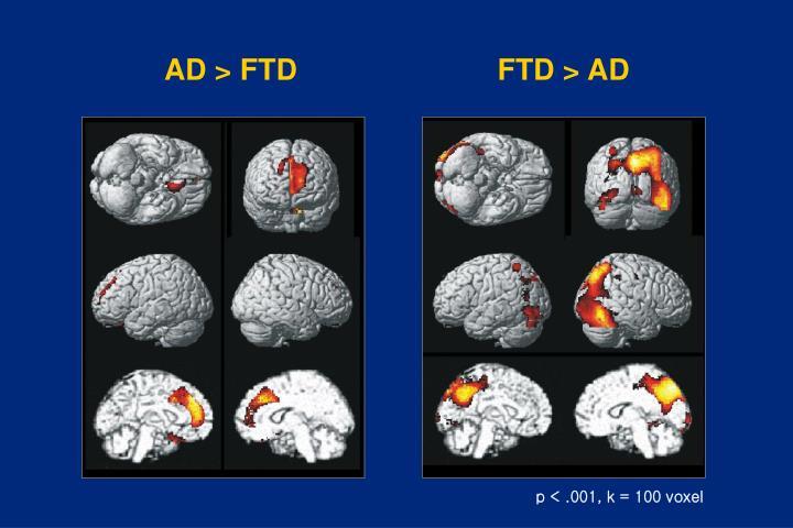 AD > FTD