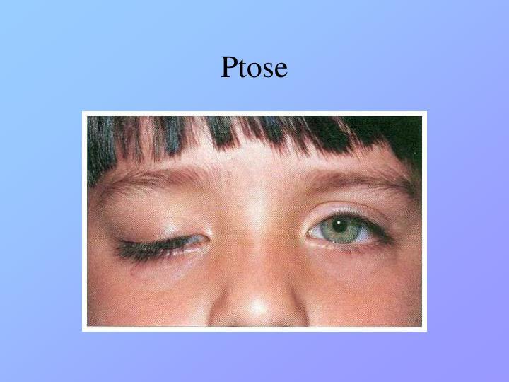 Ptose