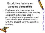 exudative lesions or weeping dermatitis