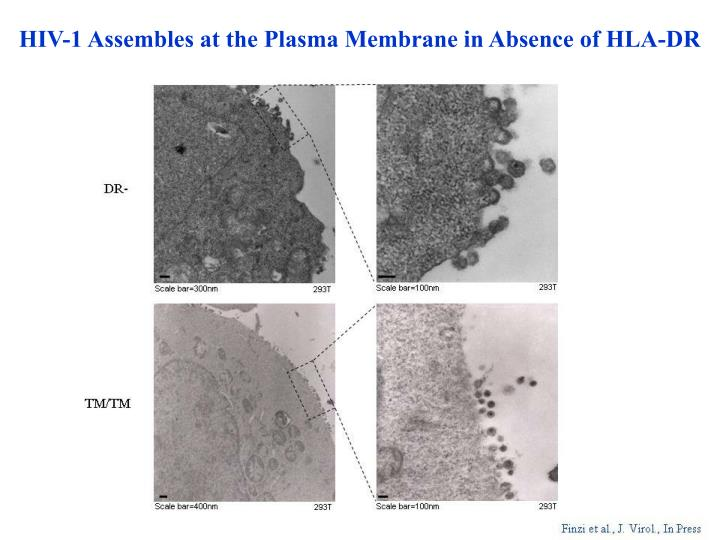 HIV-1 Assembles at the Plasma Membrane in Absence of HLA-DR