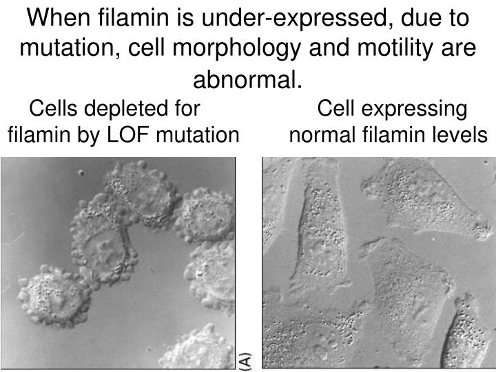 When filamin is under-expressed, due to mutation, cell morphology and motility are abnormal.