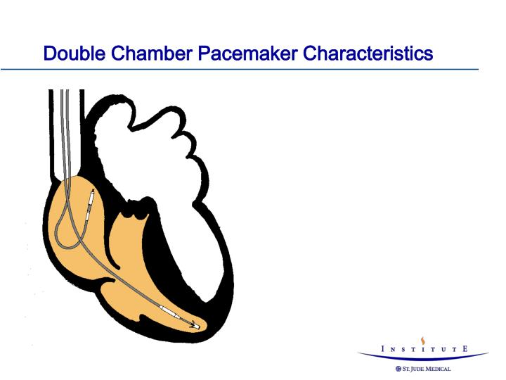 Double Chamber Pacemaker Characteristics