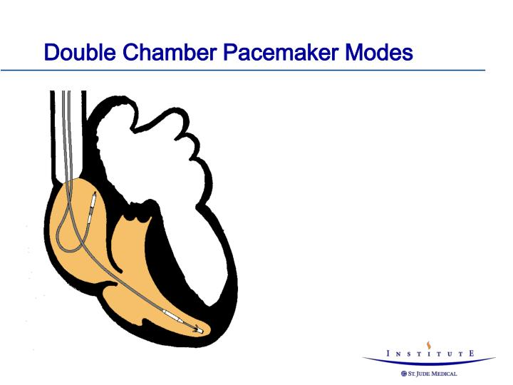 Double Chamber Pacemaker Modes