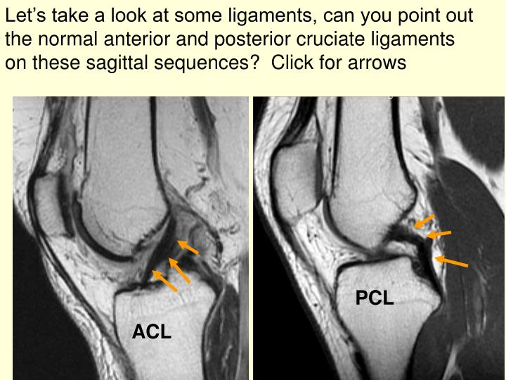 Let's take a look at some ligaments, can you point out the normal anterior and posterior cruciate ligaments on these sagittal sequences?  Click for arrows