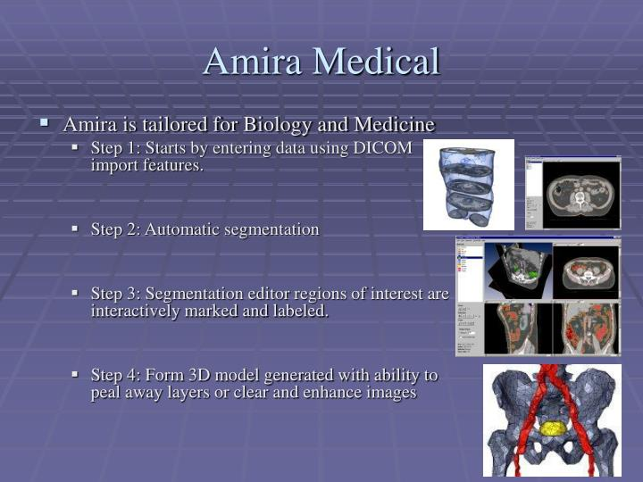 Amira Medical