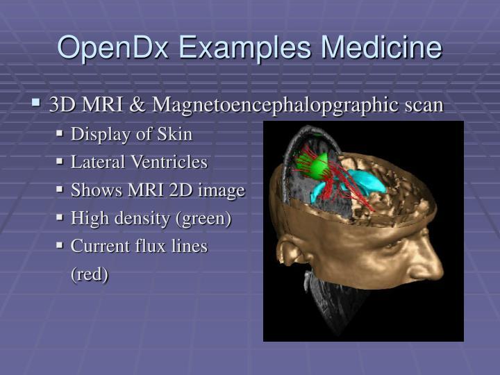 OpenDx Examples Medicine