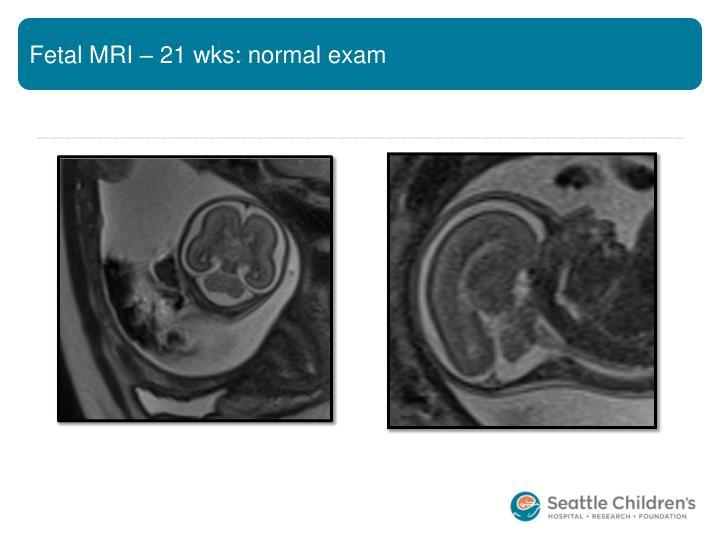 Fetal MRI – 21 wks: normal exam