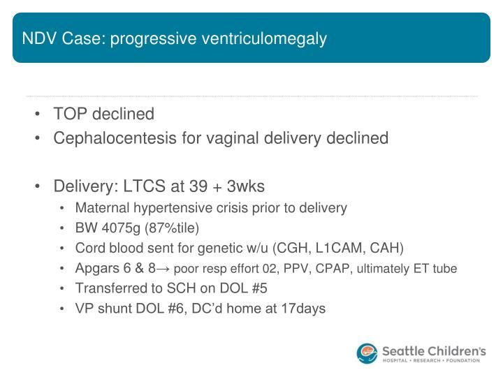 NDV Case: progressive ventriculomegaly