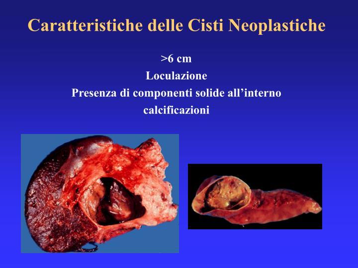 Caratteristiche delle Cisti Neoplastiche