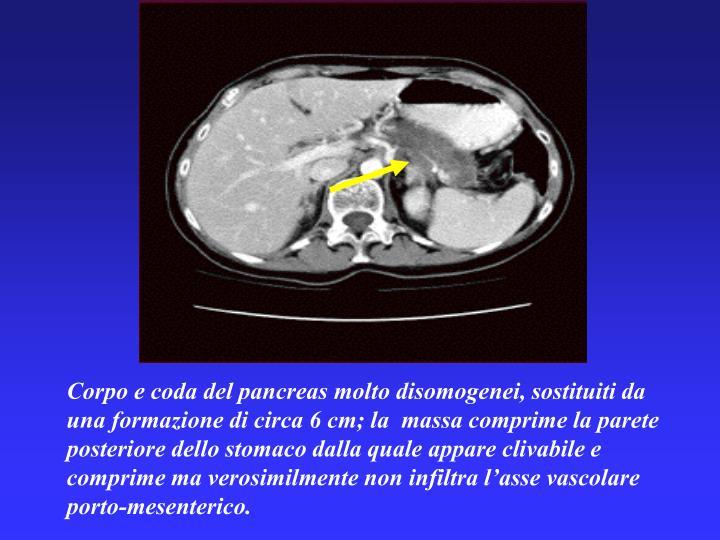 Corpo e coda del pancreas molto disomogenei, sostituiti da