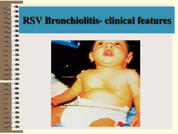 RSV Bronchiolitis- clinical features