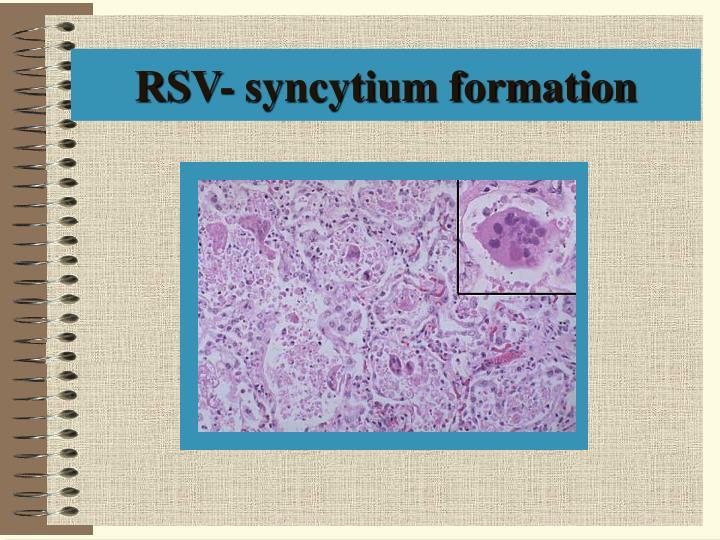 RSV- syncytium formation