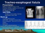 tracheo esophageal fistula