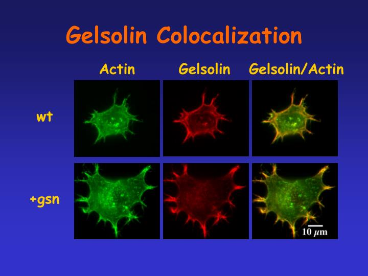 Gelsolin Colocalization