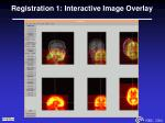 registration 1 interactive image overlay