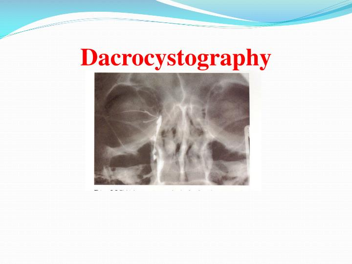 Dacrocystography