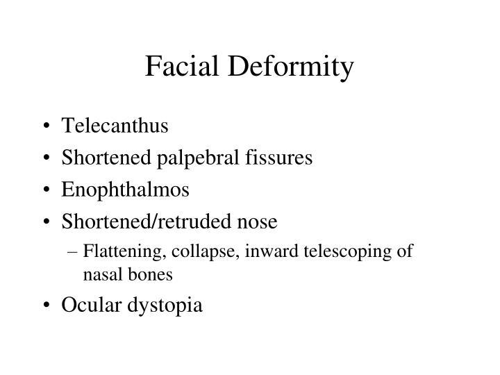 Facial Deformity