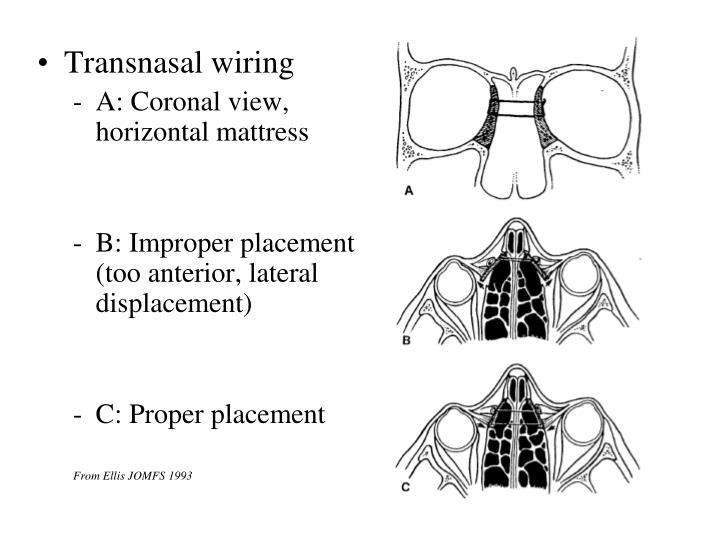 Transnasal wiring