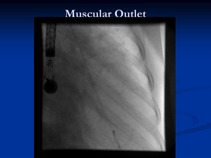 Muscular Outlet