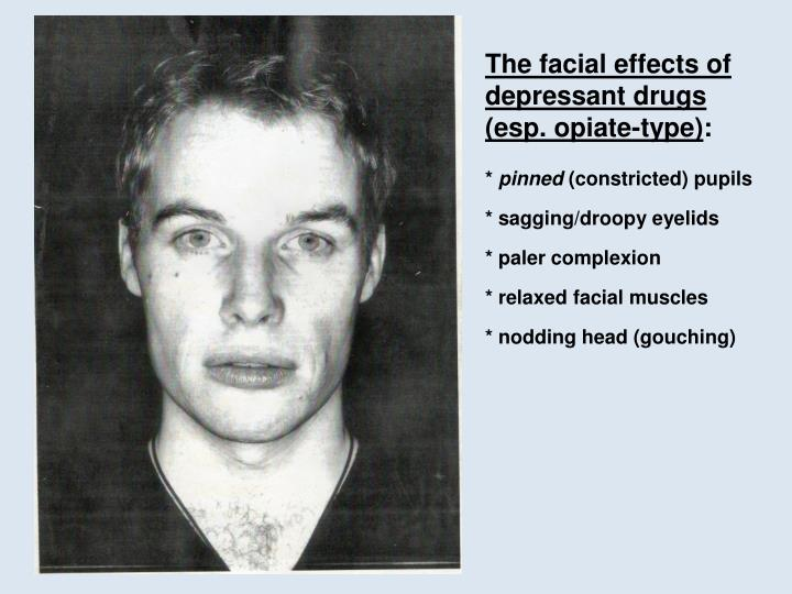 The facial effects of depressant drugs (esp. opiate-type)