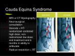 cauda equina syndrome1