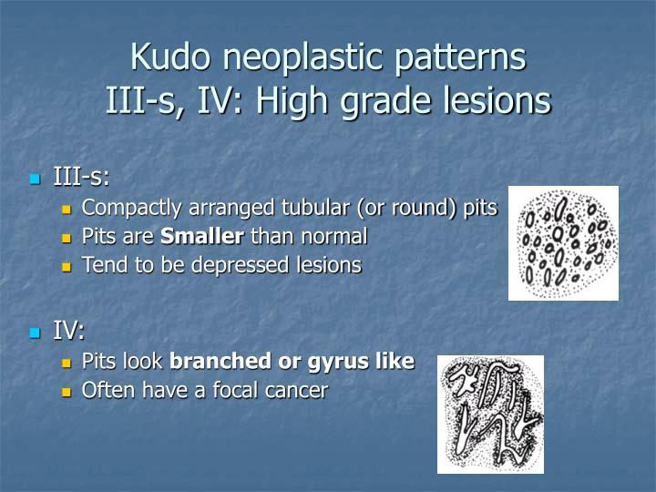 Kudo neoplastic patterns