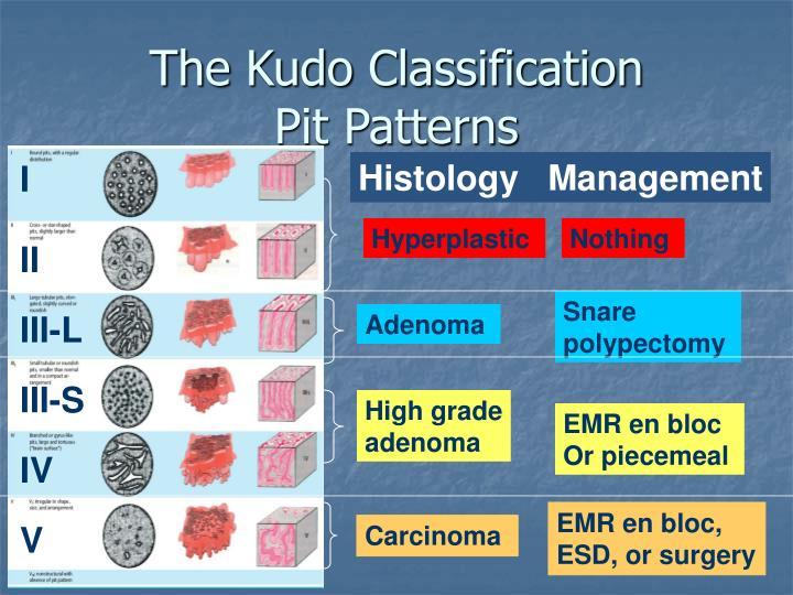The Kudo Classification
