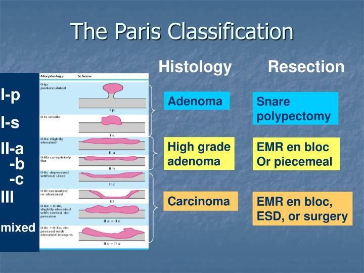 The Paris Classification