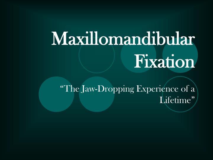 maxillomandibular fixation n.