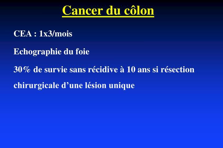 Cancer du côlon